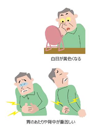 の ん 症状 が 膵臓